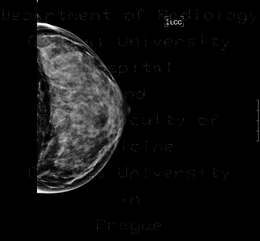 Radiology image - Mammography, dense type, normal finding: Thorax, Breast: MMG - Mammography