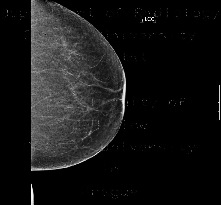 Radiology image - Mammography, normal finding, fatty type, Tabar II: Thorax, Breast: MMG - Mammography
