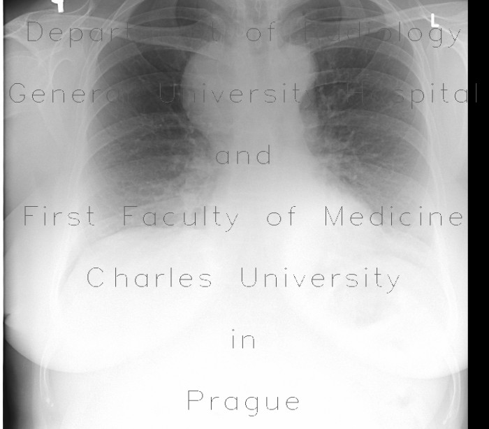 Radiology image - Mediastinal expansion: Thorax, Mediastinum and pleural cavity: X-ray - Plain radiograph