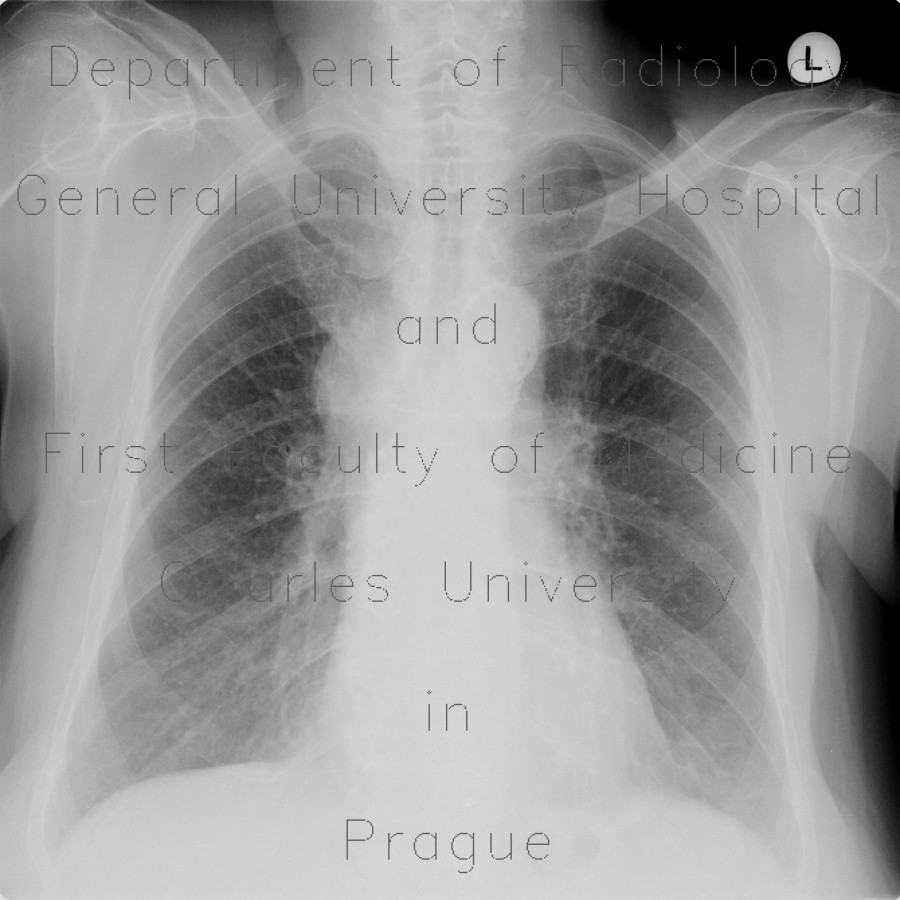 Radiology image - Mediastinal lymphadenopathy, malignant lymphoma, correlation: Thorax, Lymphatic, Mediastinum and pleural cavity: X-ray - Plain radiograph