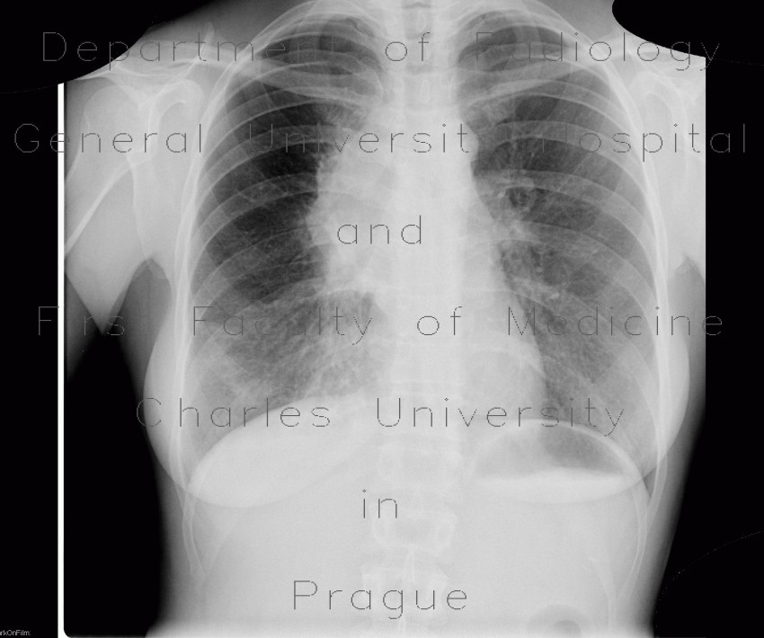 Radiology image - Mediastinal lymphoma, chest radiograph: Thorax, Lymphatic, Mediastinum and pleural cavity: X-ray - Plain radiograph