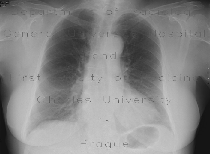 Radiology image - Mediastinal tumour, chest radiograph before: Thorax, Mediastinum and pleural cavity: X-ray - Plain radiograph