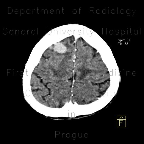 Radiology image - Metastasis in brain, multiple, multiple myeloma: Brain, Soft tissue: CT - Computed tomography