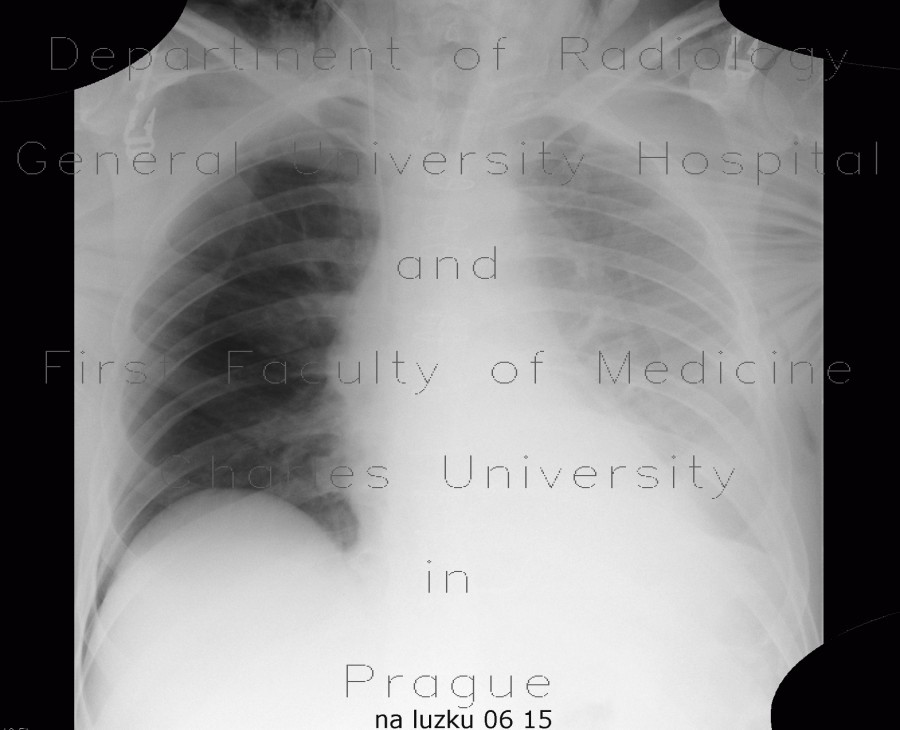 Radiology image - Muscular emphysema, pleural effusion, deep sulcus sign, pneumothorax, PNO: Thorax, Lung, Mediastinum and pleural cavity, Soft tissue: X-ray - Plain radiograph