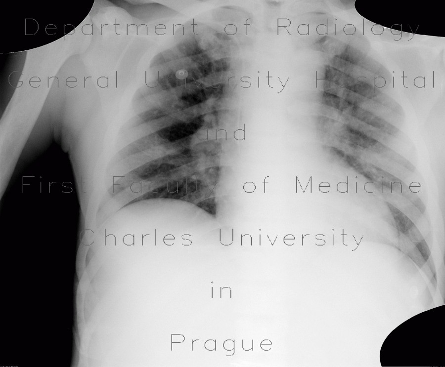 Radiology image - Myeloproliferative disorder, skeletal changes: Abdomen, Bone, Lymphatic, Other: X-ray - Plain radiograph