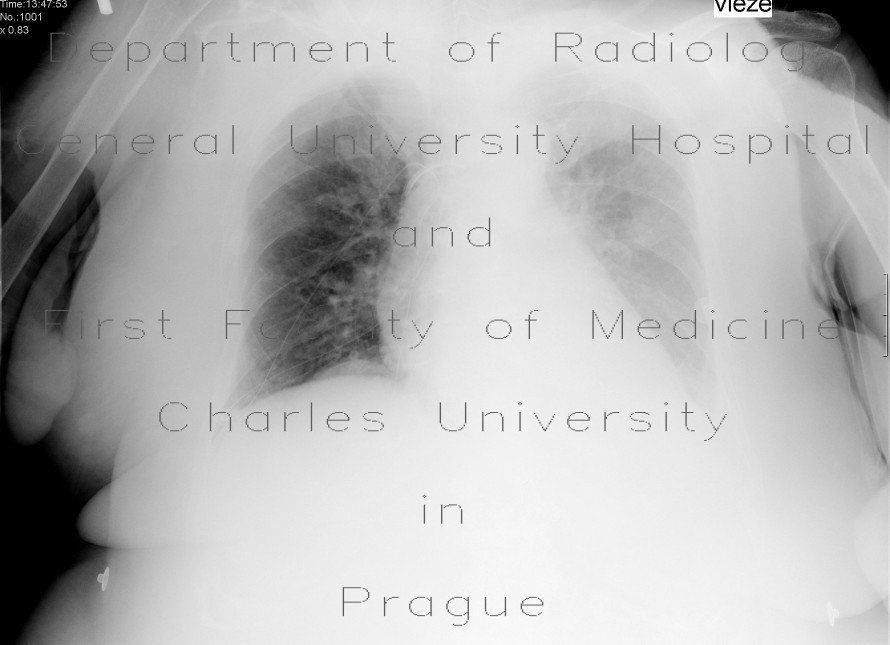 Radiology image - Nasogastric tube in pleural cavity, pneumothorax, pleural effusion: Thorax, Lung, Mediastinum and pleural cavity: X-ray - Plain radiograph