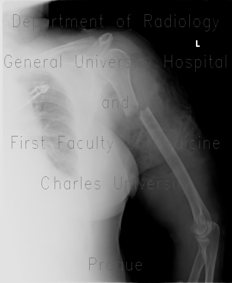Radiology image - Open fracture of humerus, transection of brachial artery: Extremity, Bone, Soft tissue, Vessels: X-ray - Plain radiograph