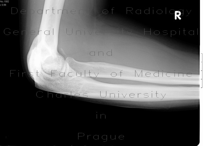 Radiology image - Osseous bridging of the left elbow: Extremity, Bone: X-ray - Plain radiograph