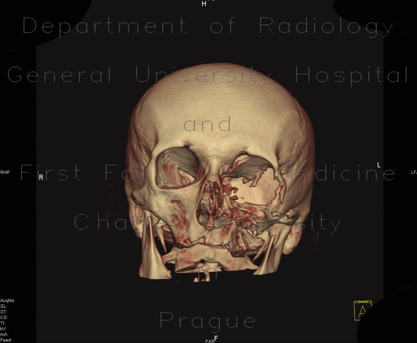 Radiology image - Osteolytic changes of facial skeleton: Head and Neck, Bone, Orbit, Sinuses: CT - Computed tomography