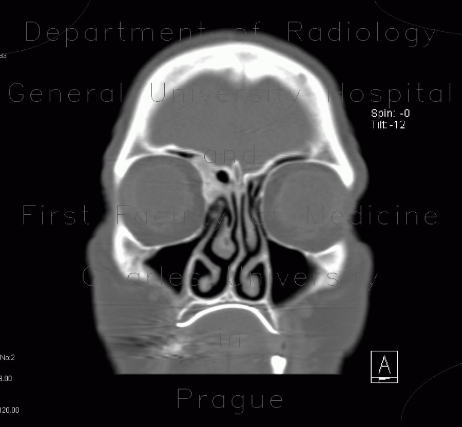 Radiology image - Osteoma of lamina papyracea: Head and Neck, Orbit, Sinuses: CT - Computed tomography