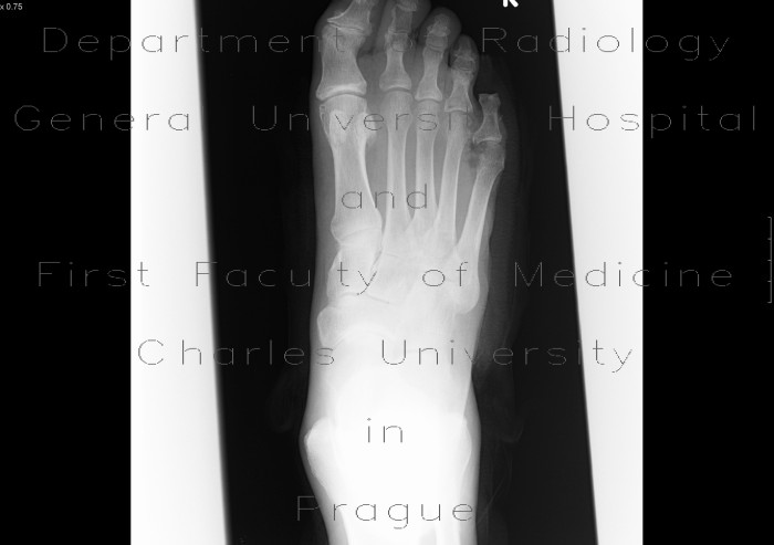 Radiology case: Osteomyelitis of fifth metatarsal bone