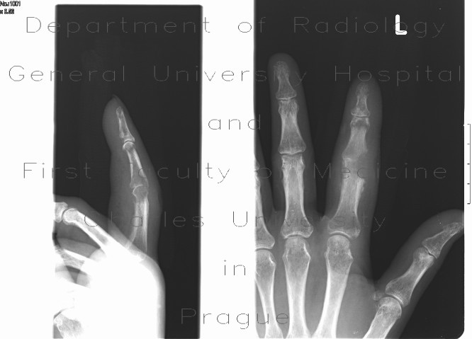 Radiology case: Osteomyelitis of finger