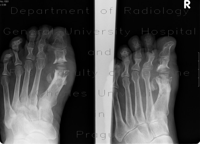 Radiology image - Osteomyelitis of first metatarsophalangeal joint, MTP joint replacement: Extremity, Bone: X-ray - Plain radiograph