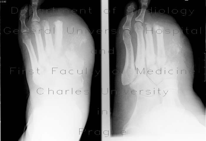 Radiology case: Osteomyelitis of metatarsal bones
