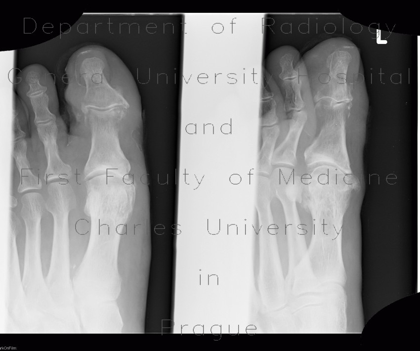Radiology case: Osteomyelitis of the toe