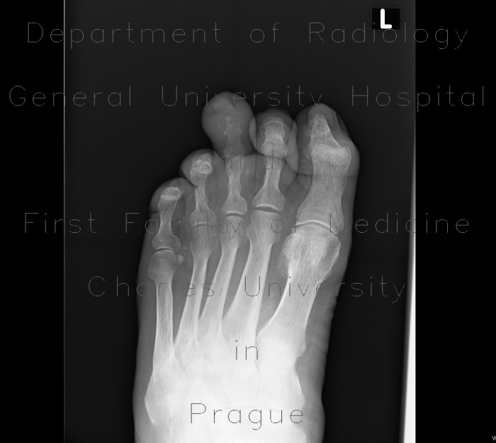 Radiology case: Osteomyelitis of toe