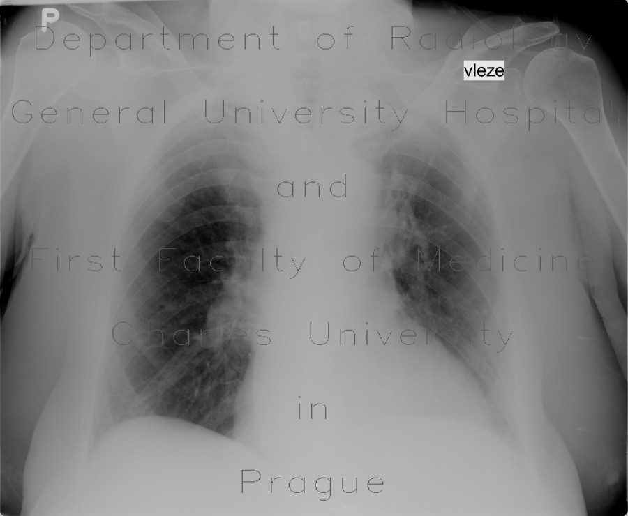 Radiology image - Pachypleuritis, apical, postspecific changes: Thorax, Lung, Mediastinum and pleural cavity: X-ray - Plain radiograph