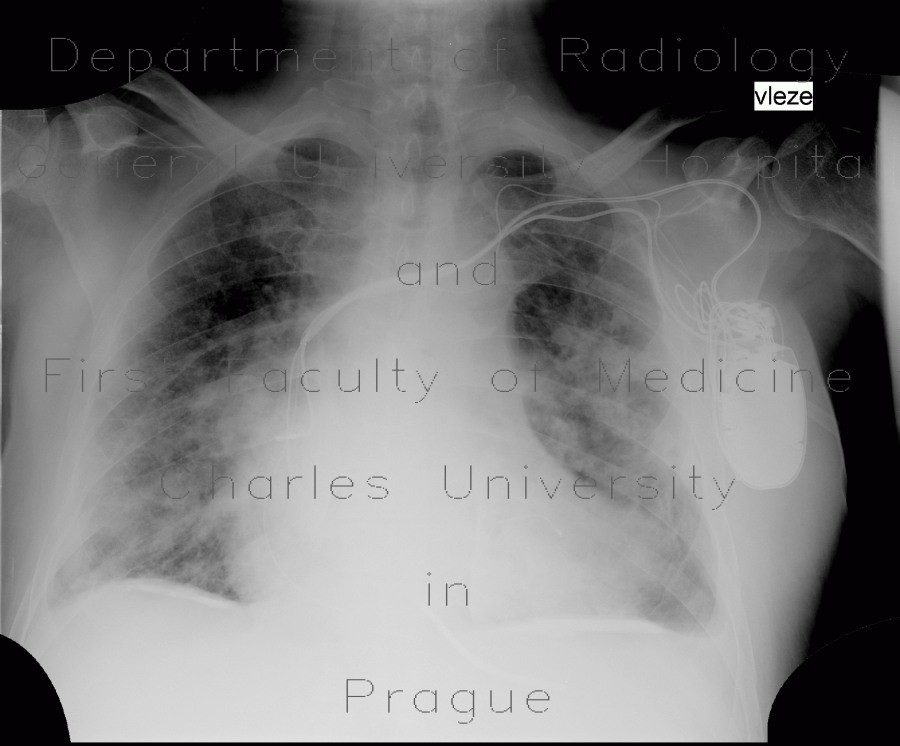 Radiology image - Pachypleuritis, calcified, pachypleuritis calcarea: Thorax, Mediastinum and pleural cavity: X-ray - Plain radiograph