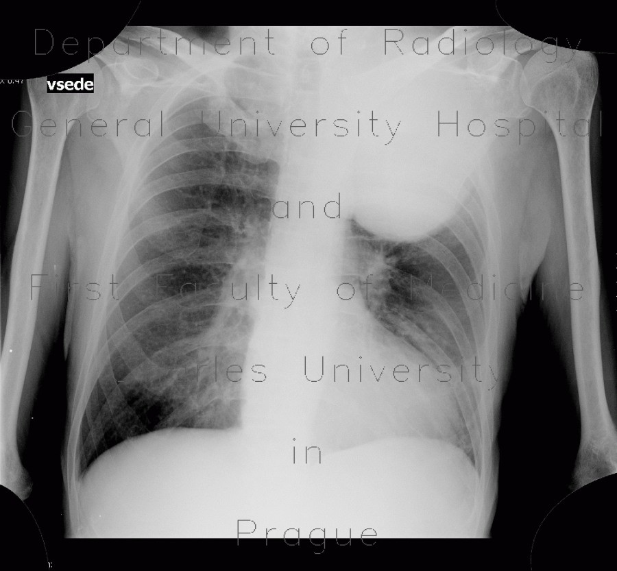 Radiology image - Pancoust tumor, extension into spine, lung cancer, pulmonary carcinoma: Spine and Axial, Thorax, Bone, Brain, Lung, Mediastinum and pleural cavity: X-ray - Plain radiograph