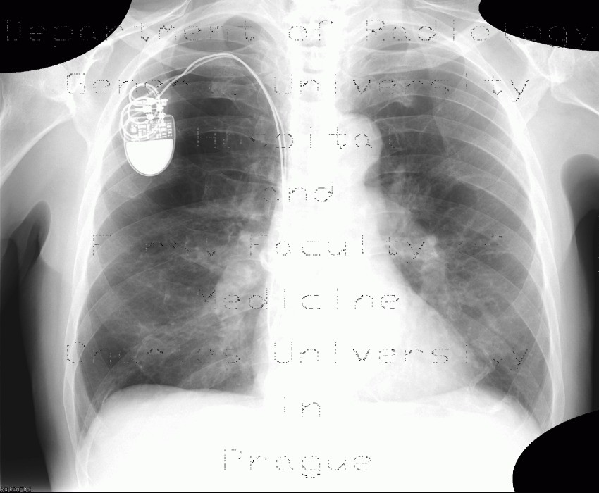 Radiology image - Panlobular emphysema, vanishing lung syndrome, bullous emphysema: Thorax, Lung: X-ray - Plain radiograph
