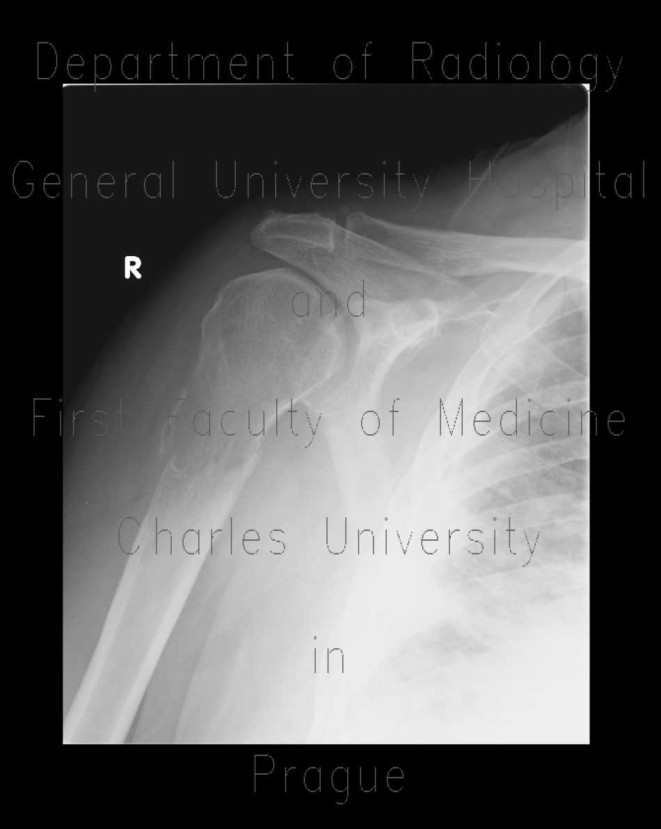 Radiology image - Pathological fracture of humerus, fracture: Extremity, Bone: X-ray - Plain radiograph