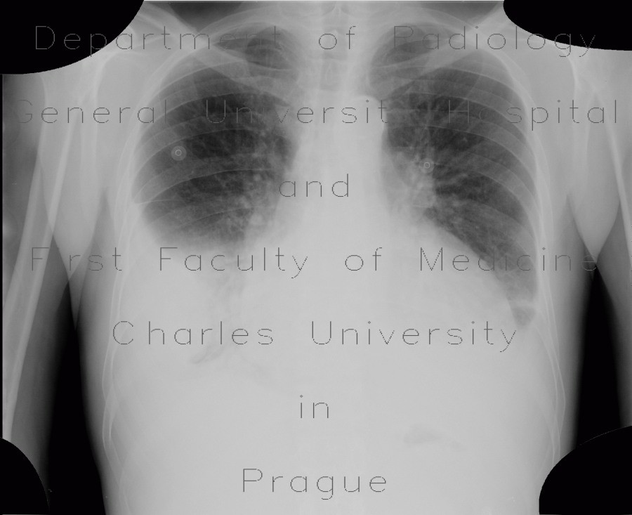 Radiology image - Pericardial effusion after myocardial biopsy, after: Thorax, Heart, Mediastinum and pleural cavity: X-ray - Plain radiograph