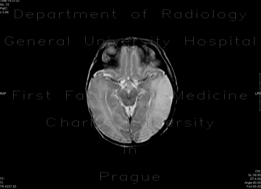 Radiology image - Perinatal thrombosis of the left middle cerebral artery, MCA: Brain, Brain: MRI - Magnetic Resonance Imaging