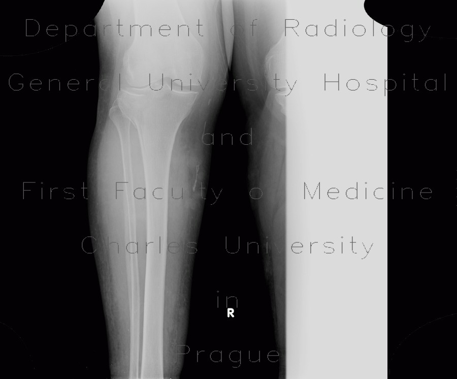 Radiology image - Periostosis, fibula, CVI, chronic venous insufficiency, perimalleolar edema: Extremity, Bone, Soft tissue: X-ray - Plain radiograph