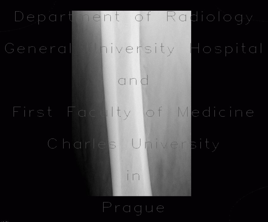 Radiology image - Periostosis of femur: Extremity, Bone: X-ray - Plain radiograph