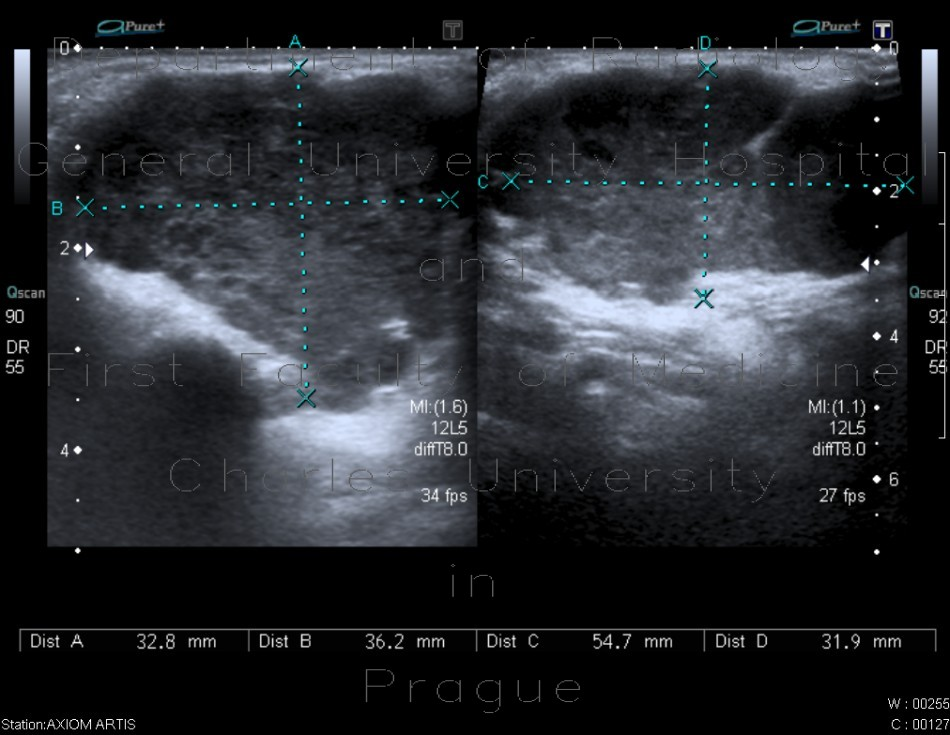 Radiology image - Pleomorphic adenoma, parotid gland: Head and Neck, Oral cavity: US - Ultrasound