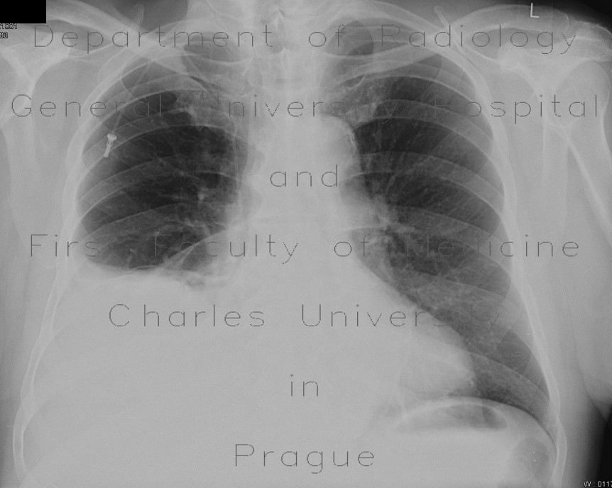 Radiology image - Pleural effusion: Thorax, Mediastinum and pleural cavity: X-ray - Plain radiograph