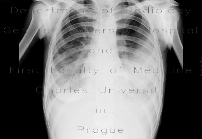 mastoiditis chronic