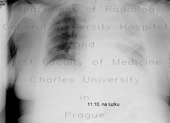 Radiology image - Pleural effusion, lung tumour: Thorax, Lung, Mediastinum and pleural cavity: X-ray - Plain radiograph