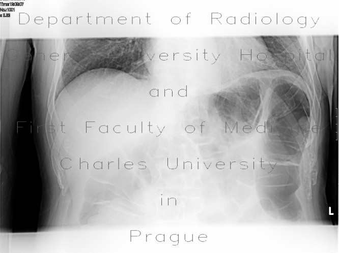Radiology image - Pneumatosis of the colon: Abdomen, Large bowel: X-ray - Plain radiograph