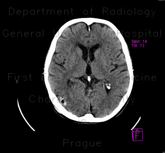 Radiology image - Pneumocephalus: Brain, Brain: CT - Computed tomography