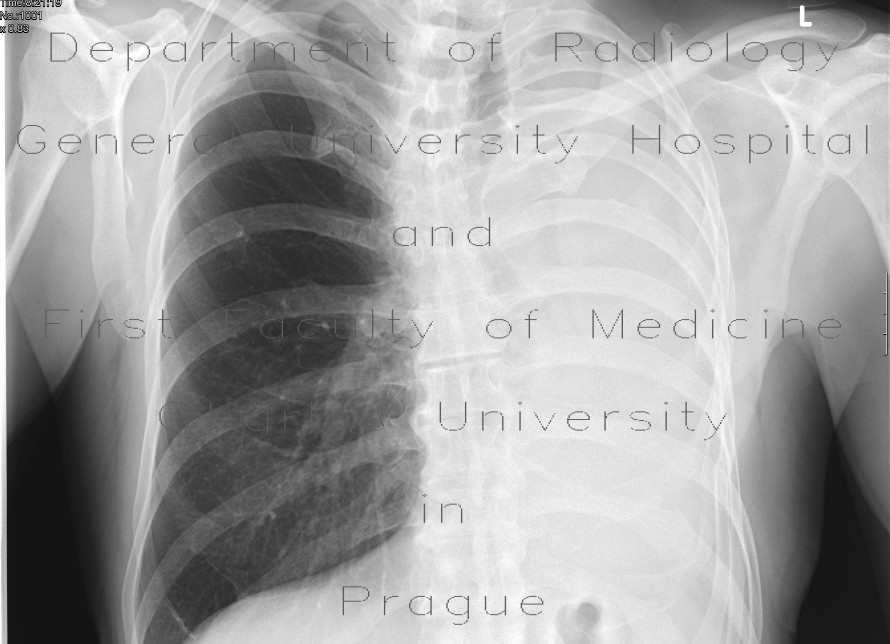 Radiology image - Pneumonectomy: Thorax, Lung, Mediastinum and pleural cavity: X-ray - Plain radiograph