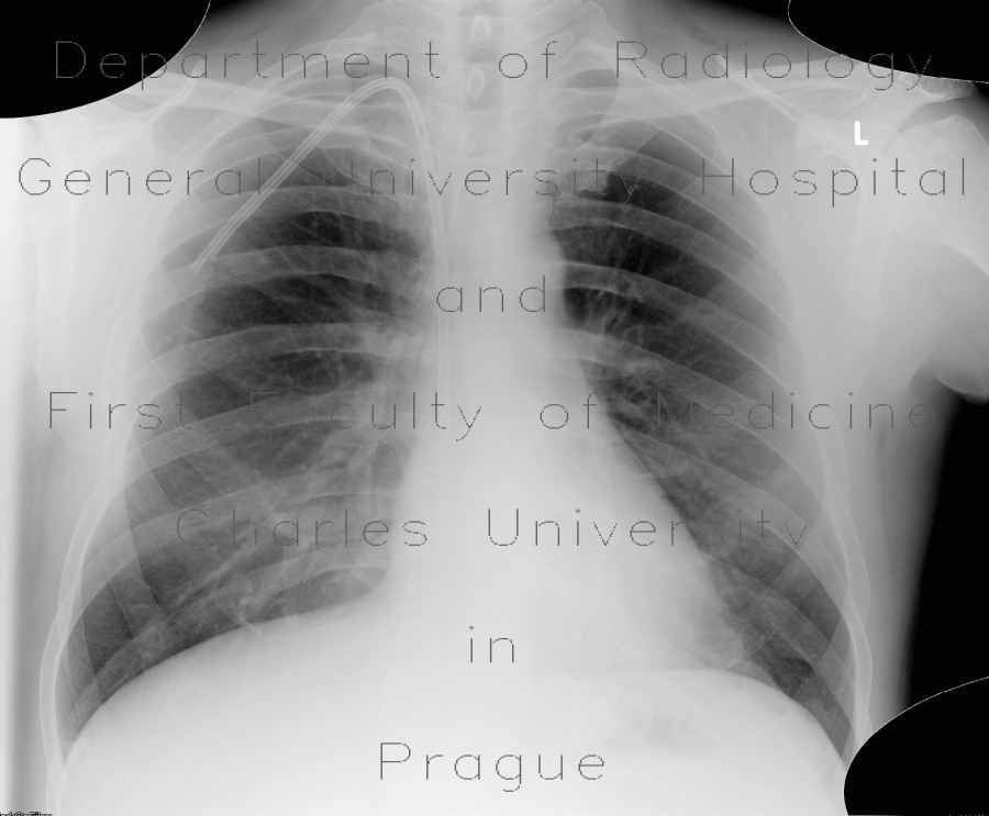 Radiology image - Pneumonia: Thorax, Lung: X-ray - Plain radiograph