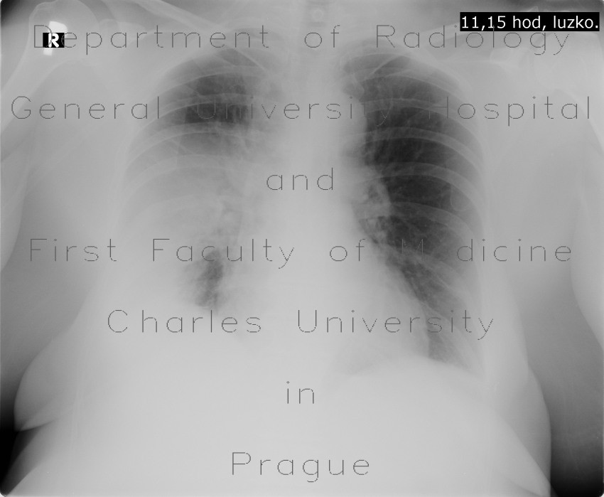 Radiology image - Pneumonia, abscess, bronchiectasis: Thorax, Lung: X-ray - Plain radiograph