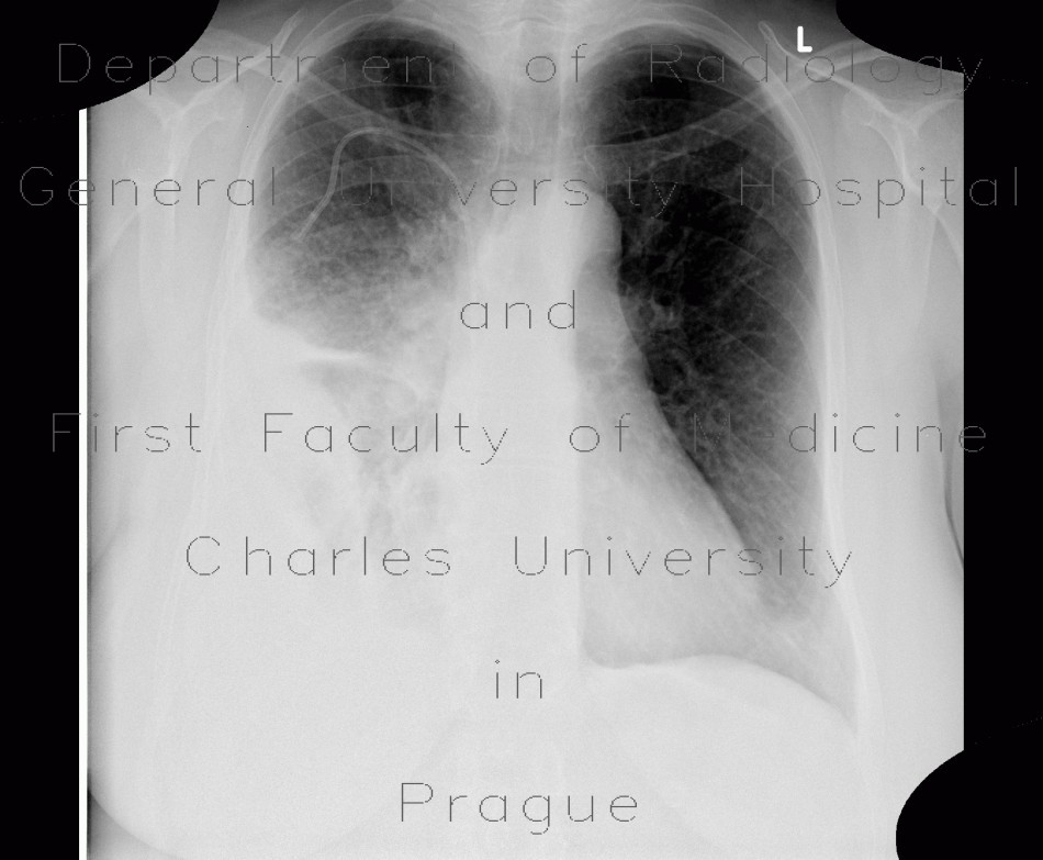 Radiology image - Pneumonia, consolidation: Thorax, Lung: X-ray - Plain radiograph