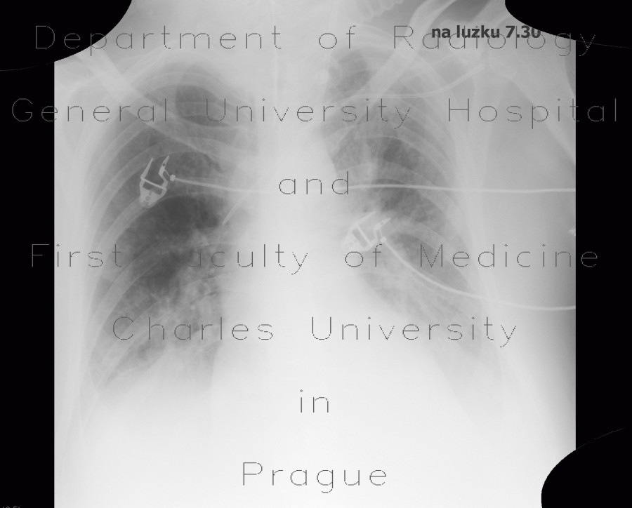 Radiology image - Pneumonia, pleural effusion, correlation: Thorax, Lung, Mediastinum and pleural cavity: X-ray - Plain radiograph
