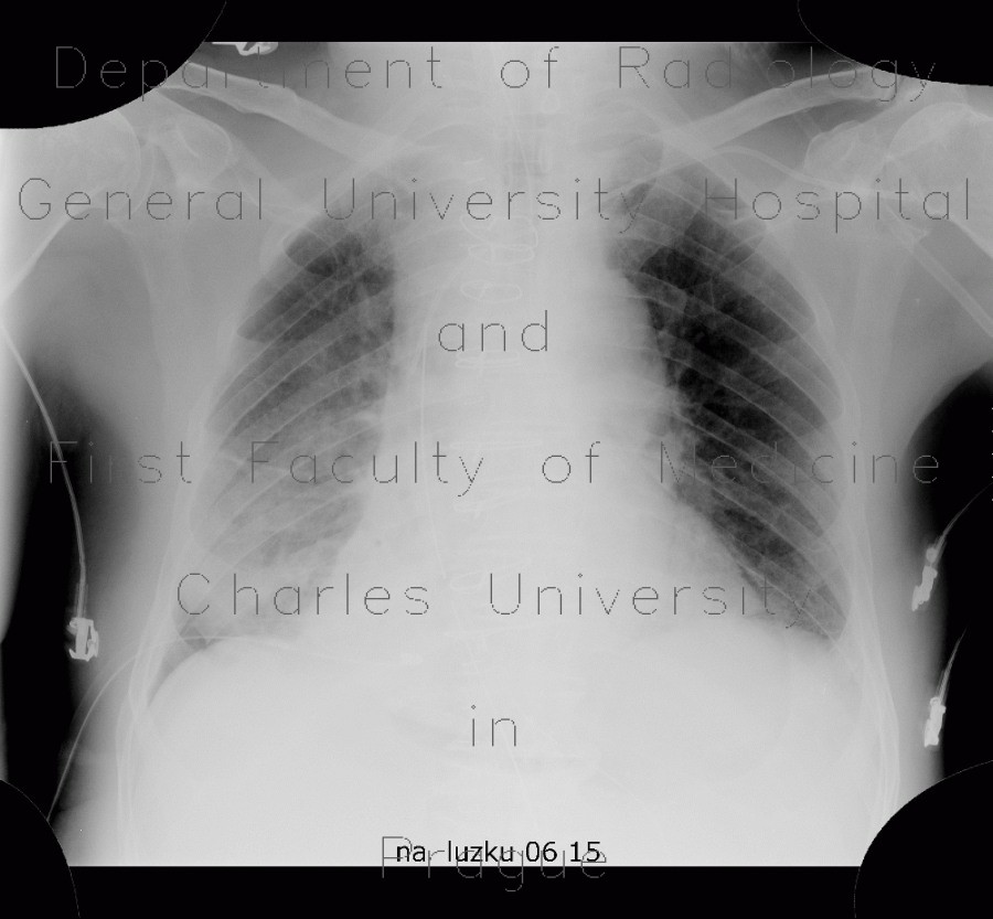 Radiology image - Pneumopericardium, air in pericardium: Thorax, Heart: X-ray - Plain radiograph