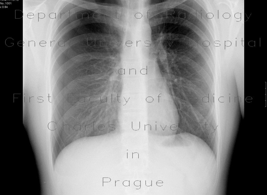 Radiology image - Pneumothorax: Thorax, Lung: X-ray - Plain radiograph