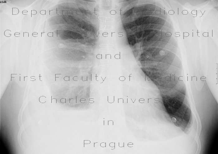Radiology image - Pneumothorax after evacuation of pleural fluid: Thorax, Mediastinum and pleural cavity: X-ray - Plain radiograph
