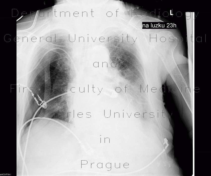 Radiology image - Pneumothorax, malposition of nasojejunal tube: Thorax, Lung, Mediastinum and pleural cavity: X-ray - Plain radiograph
