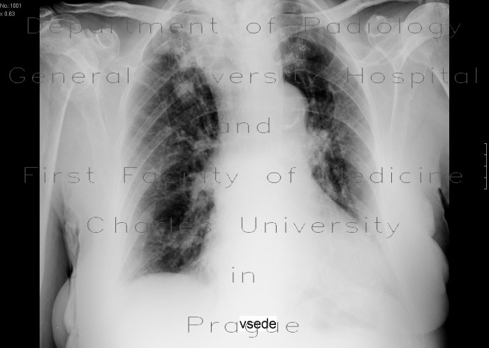 Radiology image - Postspecific changes: Thorax, Lung: CT - Computed tomography