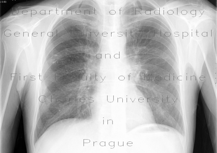 Radiology image - Postspecific changes: Thorax, Lung: X-ray - Plain radiograph
