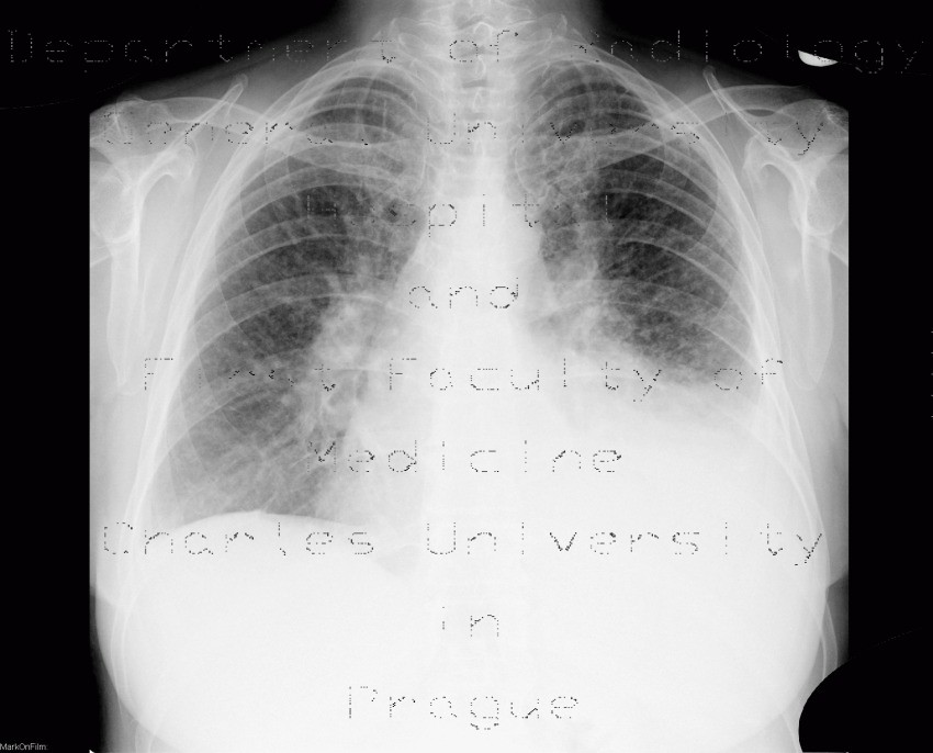 Radiology image - Pulmonary carcinosis: Thorax, Lung, Mediastinum and pleural cavity: X-ray - Plain radiograph