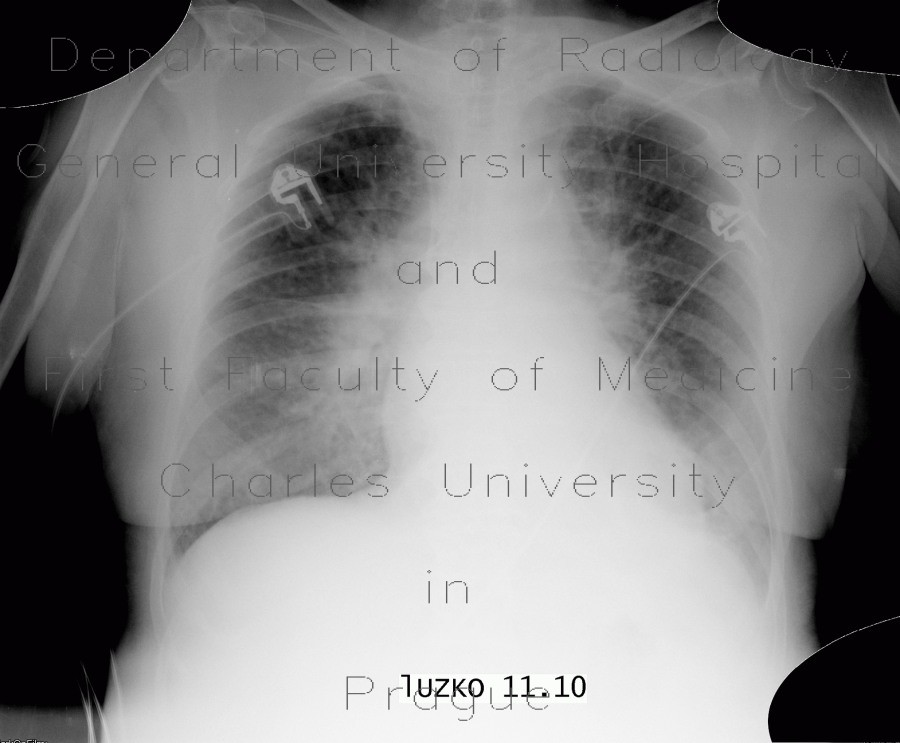Radiology image - Pulmonary edema, before treatment: Thorax, Lung, Vessels: X-ray - Plain radiograph