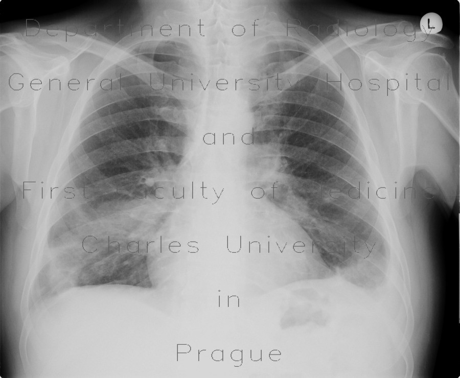 Radiology image - Pulmonary embolism, CT angiogram sign, pulmonary infarction: Thorax, Lung, Vessels: X-ray - Plain radiograph