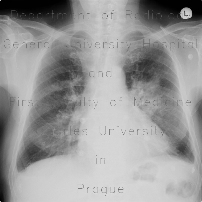 Radiology image - Pulmonary infiltrates, pleural effusion: Thorax, Lung, Mediastinum and pleural cavity: X-ray - Plain radiograph